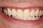 Whitening-After-Image