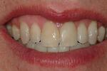 Diastema-Closure-with-Bonding-After-Image