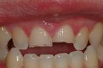 Chipped-Teeth-and-Dental-Bonding-Before-Image