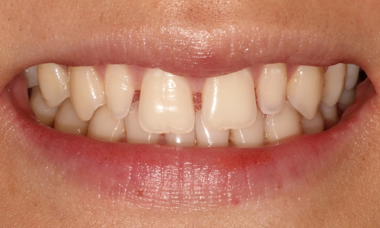 Smile-enhancement-Before-Image