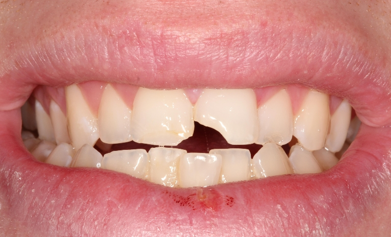 Dental-Injury-Before-Image