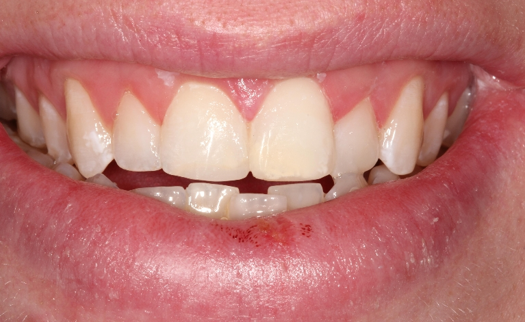 Dental-Injury-After-Image
