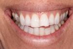 Composite-Tooth-Colored-Bonding-Before-Image